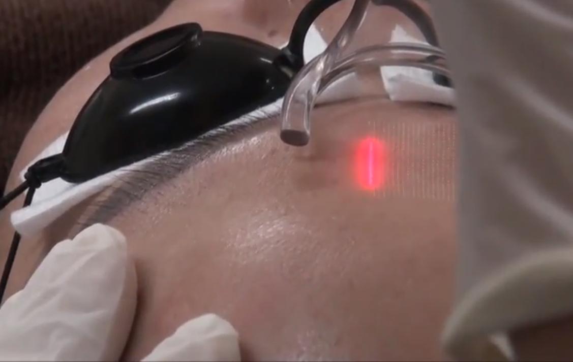 Laser tạo thành các vết cắt nhỏ li ti cải thiện tình trạng nếp nhăn